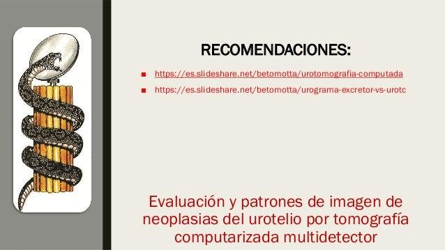 ■ https://es.slideshare.net/betomotta/urotomografia-computada ■ https://es.slideshare.net/betomotta/urograma-excretor-vs-u...