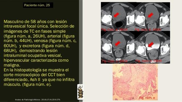 Masculino de 58 años con lesión intravesical focal única. Selección de imágenes de TC en fases simple (figura núm. a, 26UH...
