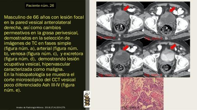 Masculino de 66 años con lesión focal en la pared vesical anterolateral derecha, así como cambios permeativos en la grasa ...