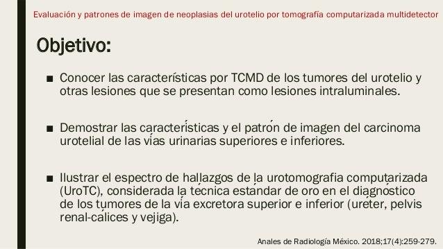 Objetivo: ■ Conocer las características por TCMD de los tumores del urotelio y otras lesiones que se presentan como lesion...