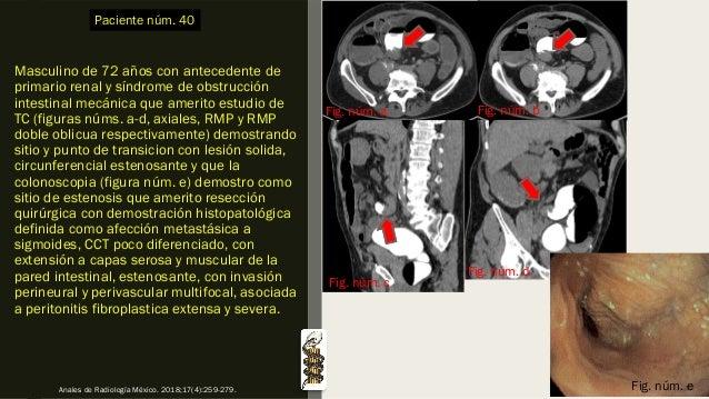 Masculino de 72 años con antecedente de primario renal y síndrome de obstrucción intestinal mecánica que amerito estudio d...