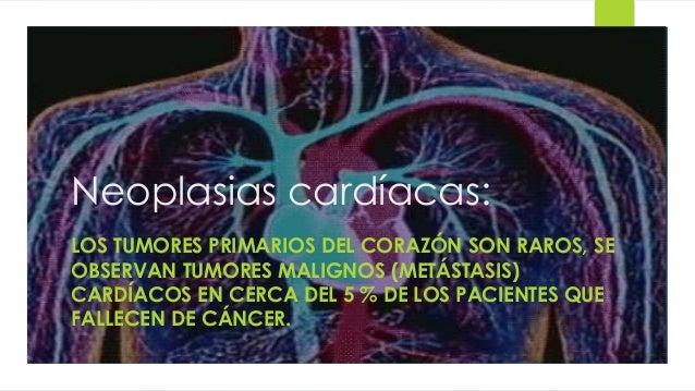 Neoplasias cardíacas:  LOS TUMORES PRIMARIOS DEL CORAZÓN SON RAROS, SE  OBSERVAN TUMORES MALIGNOS (METÁSTASIS)  CARDÍACOS ...