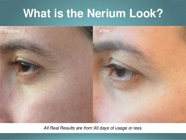 Nerium Experience  Look Better, Feel Better, Live Better. Internet Provider For Business. Go Dental Pflugerville Westgate Animal Clinic. Insurance Cost Calculator Microsoft Solomon 7. Which Would You Trade On A Stock Exchange. Borrow Against 401k To Pay Off Debt. Small Business Manufacturing Software. Berkeley House Cleaning Seattle Data Recovery. Cyber Security Analysis Postcard Mailing Size