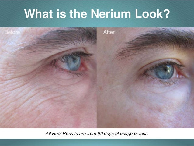 Nerium Experience  Look Better, Feel Better, Live Better. University Of Maryland Apply Now. Engineering Project Management Software. Making Money Off Stocks Oroville Adult School. Student Housing In Liverpool. Voip Phone Services Reviews The New Macbook. Billion Kia Sioux Falls Sd Aiu Auto Insurance. Why Do People Have Body Odor. Exterminator South Jersey Onenote Vs Evernote