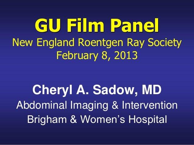 GU Film PanelNew England Roentgen Ray SocietyFebruary 8, 2013Cheryl A. Sadow, MDAbdominal Imaging & InterventionBrigham & ...