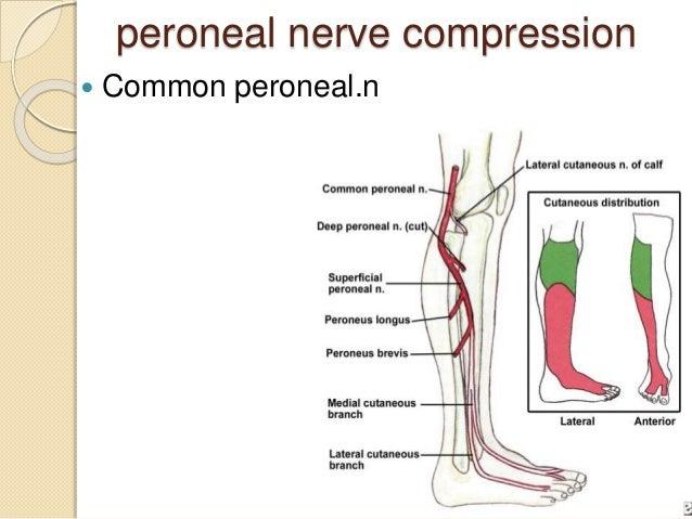 sciatic nerve steroid treatment