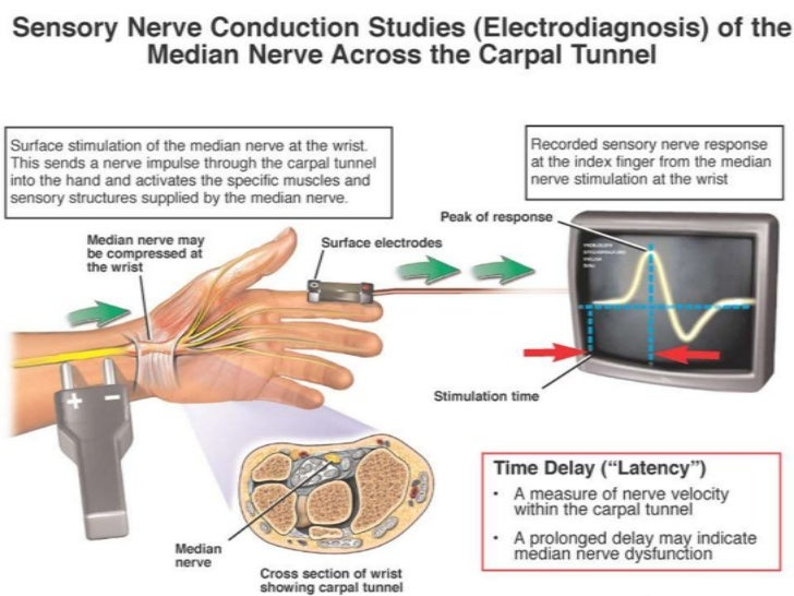 Nerve conduction study - Wikipedia