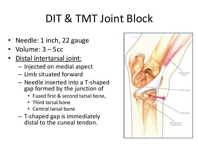 Equine Nerve & Joi... Metatarsal Bone Pain