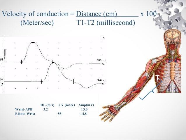 Nerves conduction study