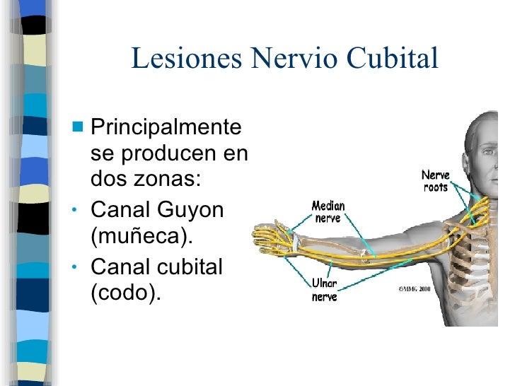 inyeccion esteroides hernia discal