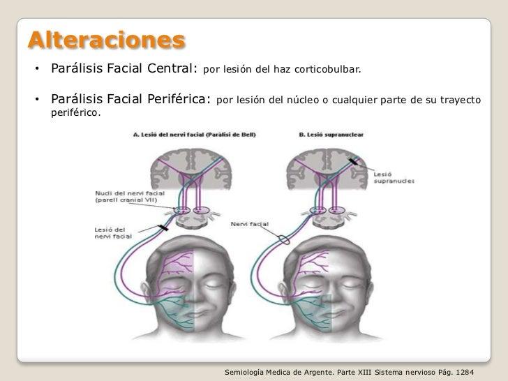 Paralisis facial central y periferica