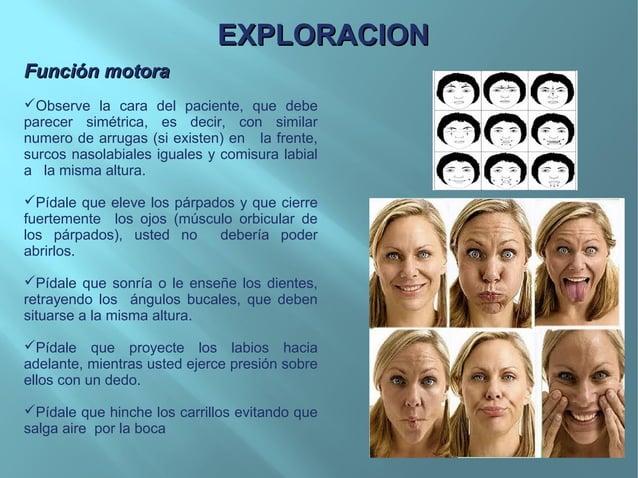 PATOLOGIA TIPICAS DEL NERVIOPATOLOGIA TIPICAS DEL NERVIOFACIALFACIALPARALISIS FACIALPARALISIS FACIALParálisis Facial Perif...