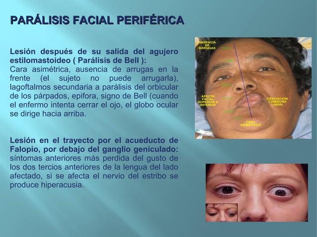 A pesar que el facial inferior es el afectado, se encuentra ciertadebilidad en los músculos inervados por el facial superi...