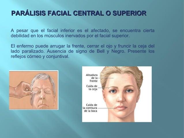 VII Par Craneal Nervio Facial