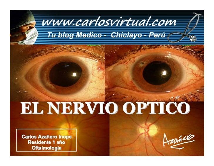 EL NERVIO OPTICO Carlos Azañero Inope   Residente 1 año     Oftalmología       Dr. Carlos Augusto Azañero Inope           ...