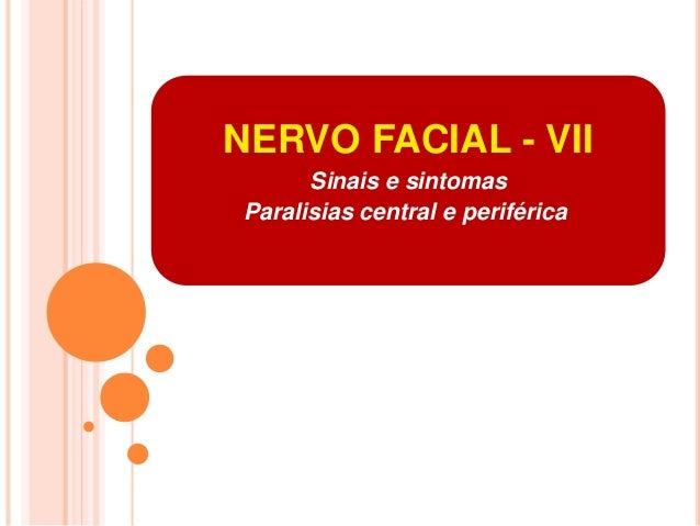 NERVO FACIAL - VII  Sinais e sintomas  Paralisias central e periférica.