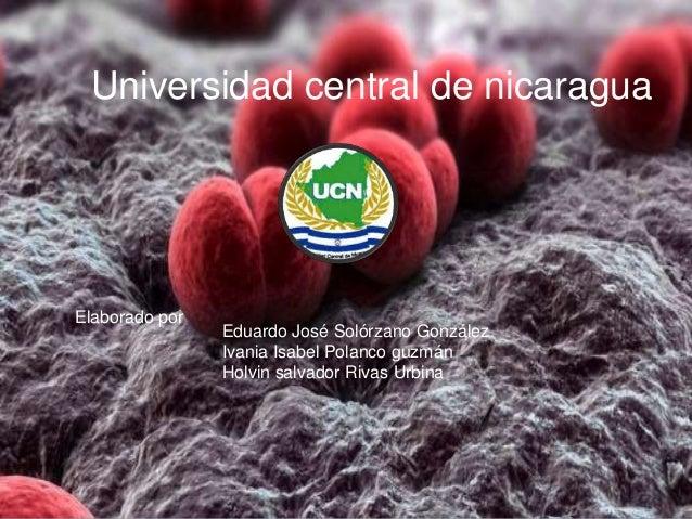 Universidad central de nicaragua Elaborado por Eduardo José Solórzano González Ivania Isabel Polanco guzmán Holvin salvado...