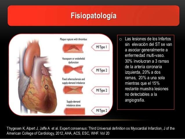 third universal definition of myocardial infarction 2012 pdf
