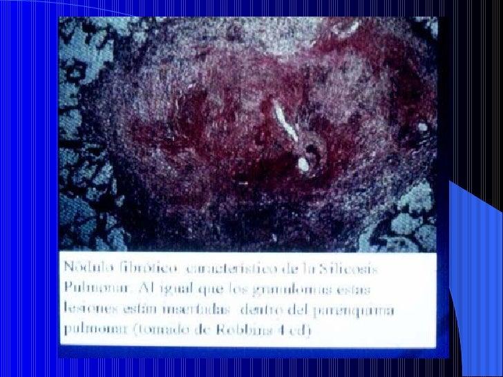 NEUMOCONIOSISAsbestosis:Las fibras están constituidas porCrisolita (asbesto blanco 95%)Silicatos de magnesio hidratado:   ...