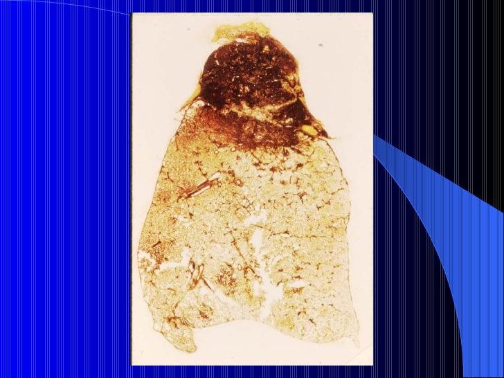 NEUMOCONIOSISAsbestosisEnfermedades con las que se relaciona:      - Fibrosis pulmonar      - Derrame pleural      - Placa...