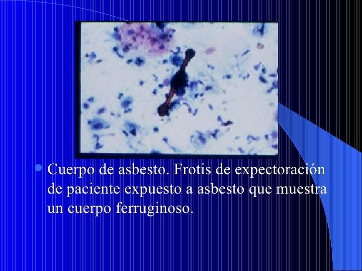 Enfermedades profesionales           NEUMOCONIOSIS Clasificación radiográfica de las lesiones  nodulares Puntiformes: Im...