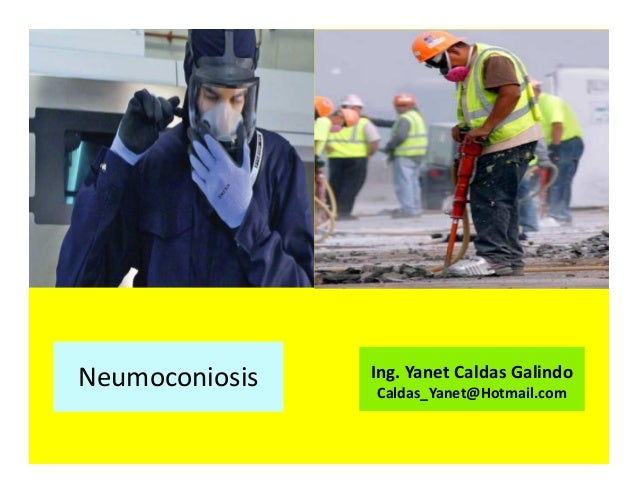 Neumoconiosis Ing. Yanet Caldas Galindo CIP: 115456 Caldas_Yanet@Hotmail.com