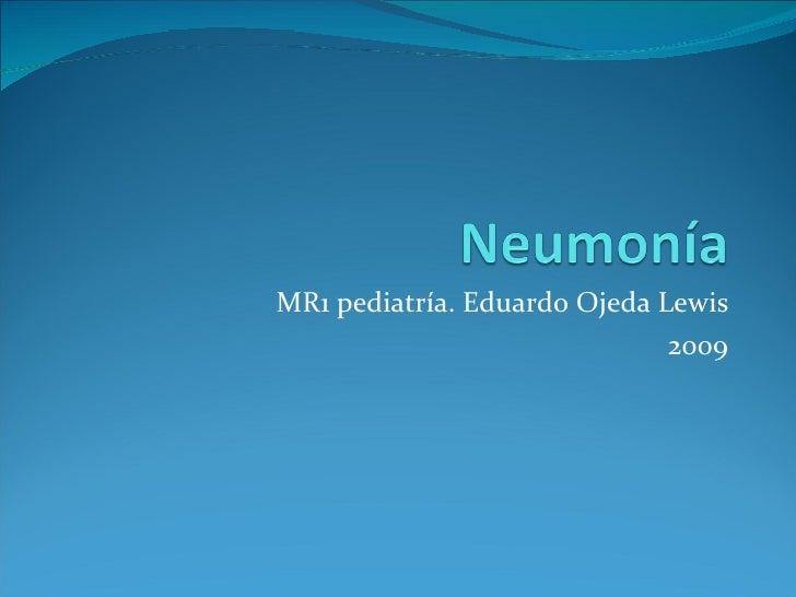 MR1 pediatría. Eduardo Ojeda Lewis 2009