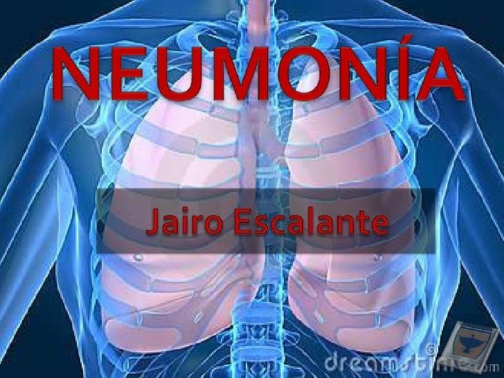 NEUMONÍA <br />Jairo Escalante <br />
