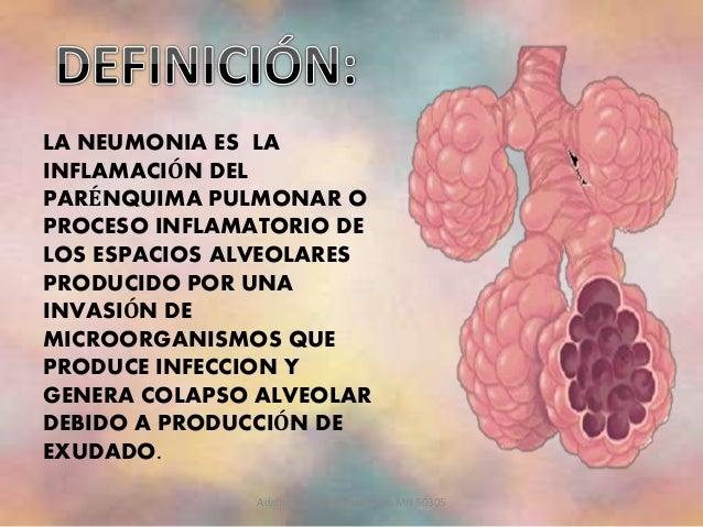 Neumonía. Cuidados de Enfermería (Diagnósticos, NIC y NOC) Slide 2