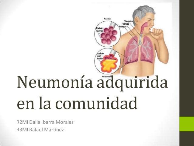 Neumonía adquirida en la comunidad R2MI Dalia Ibarra Morales R3MI Rafael Martínez