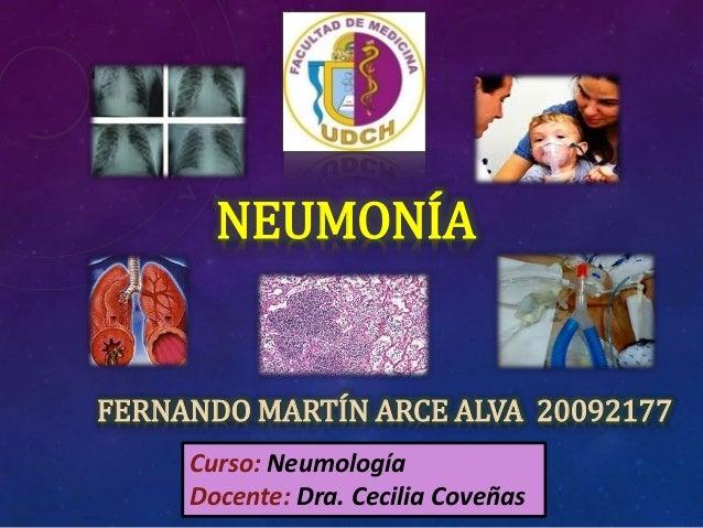 NEUMONÍA FERNANDO MARTÍN ARCE ALVA 20092177 Curso: Neumología Docente: Dra. Cecilia Coveñas