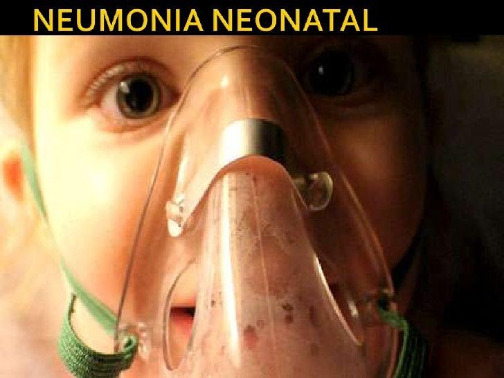    Estado de infección aguda del parénquima    pulmonar que se acompaña de síntomas    pulmonares     generales y  del   ...