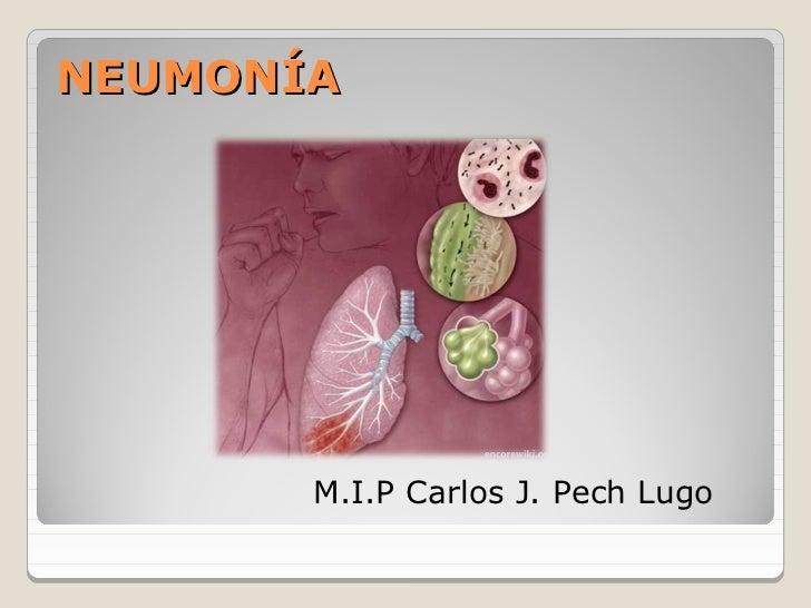 NEUMONÍA       M.I.P Carlos J. Pech Lugo