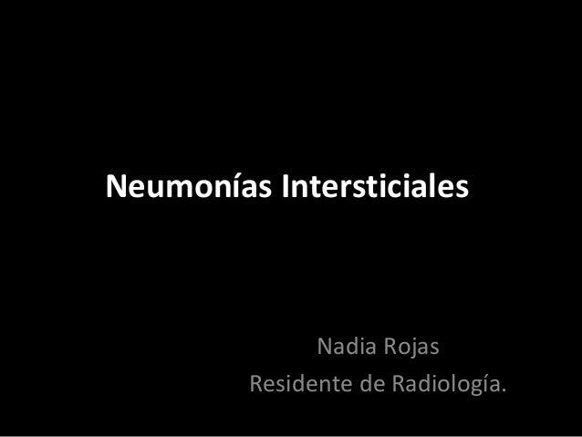 Neumonías Intersticiales Nadia Rojas Residente de Radiología.
