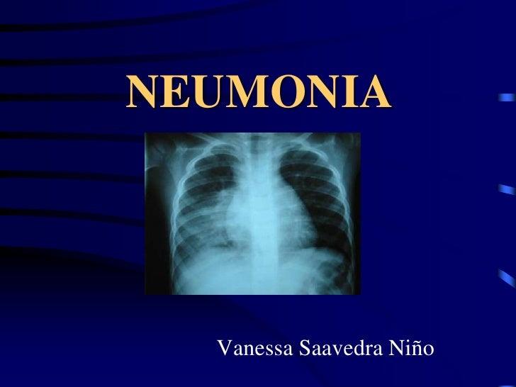 NEUMONIA<br />Vanessa Saavedra Niño<br />