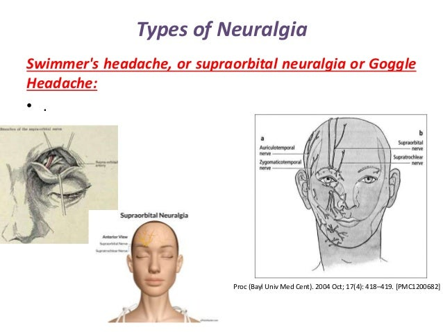 neuralgia, Skeleton