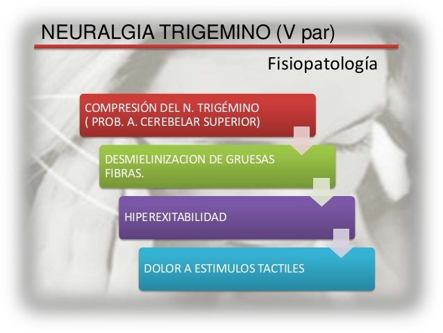 trigeminal neuralgia treatment steroids