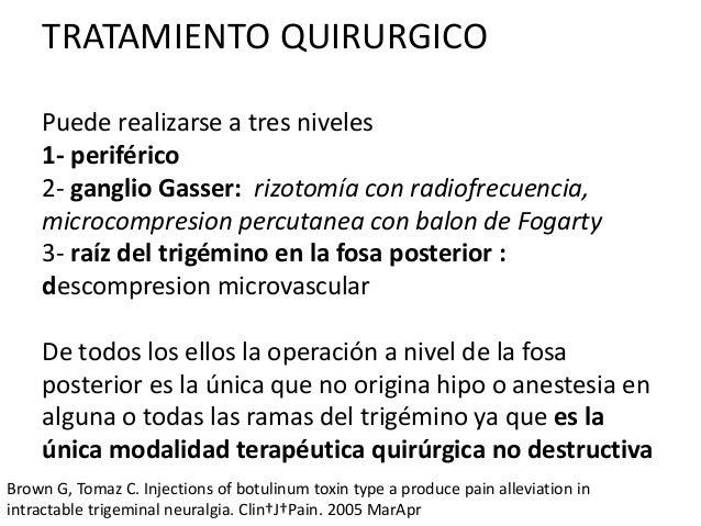 Neuralgia del trigemino tratamiento pdf995
