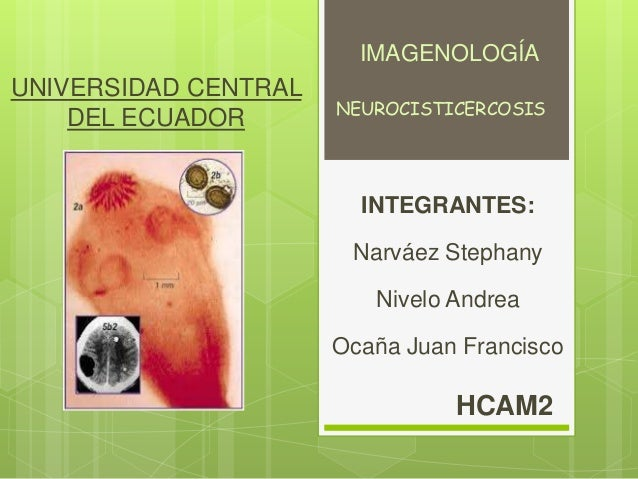 UNIVERSIDAD CENTRAL DEL ECUADOR INTEGRANTES: Narváez Stephany Nivelo Andrea Ocaña Juan Francisco HCAM2 NEUROCISTICERCOSIS ...