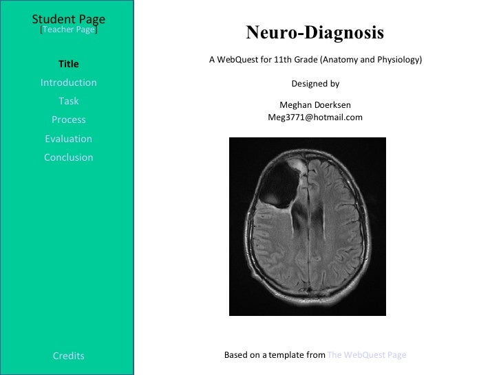 Neuro-Diagnosis Student Page Title Introduction Task Process Evaluation Conclusion Credits [ Teacher Page ] A WebQuest for...