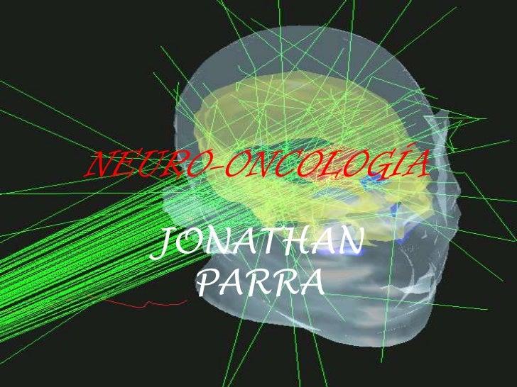NEURO-ONCOLOGÍA<br />JONATHAN PARRA<br />