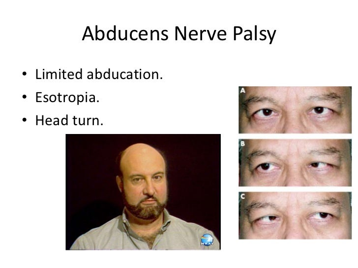 causes of facial paralysis in adults