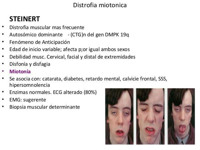 Síndrome de Steinert no âmbito da Medicina Dentária