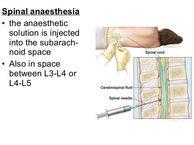 Spinal anaesthetic anatomy