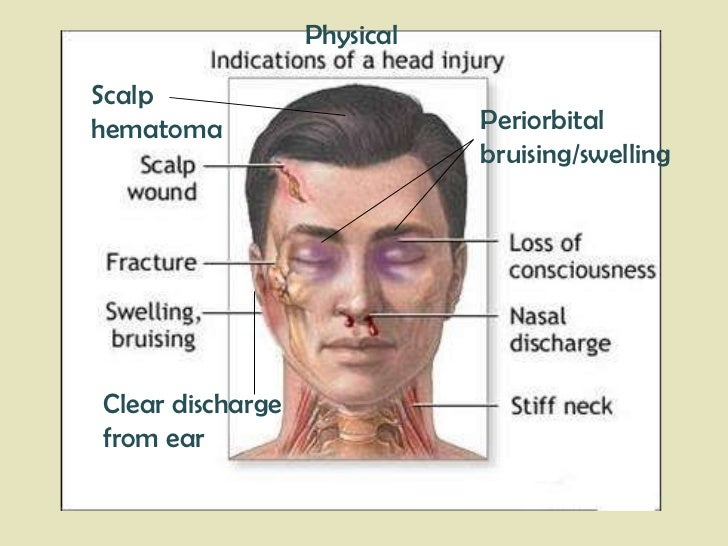 Clear discharge  from ear Periorbital bruising/swelling Scalp hematoma Physical