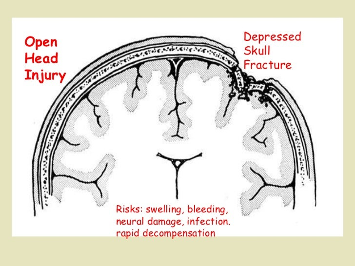 Depressed  Skull Fracture Open  Head  Injury Risks: swelling, bleeding,  neural damage, infection. rapid decompensation