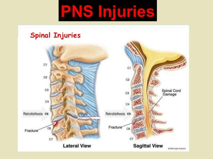 PNS Injuries Spinal Injuries