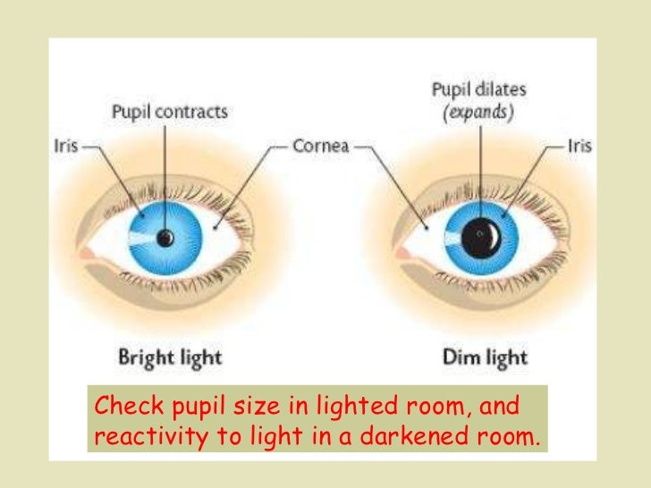 Check pupil size in lighted room, and  reactivity to light in a darkened room.