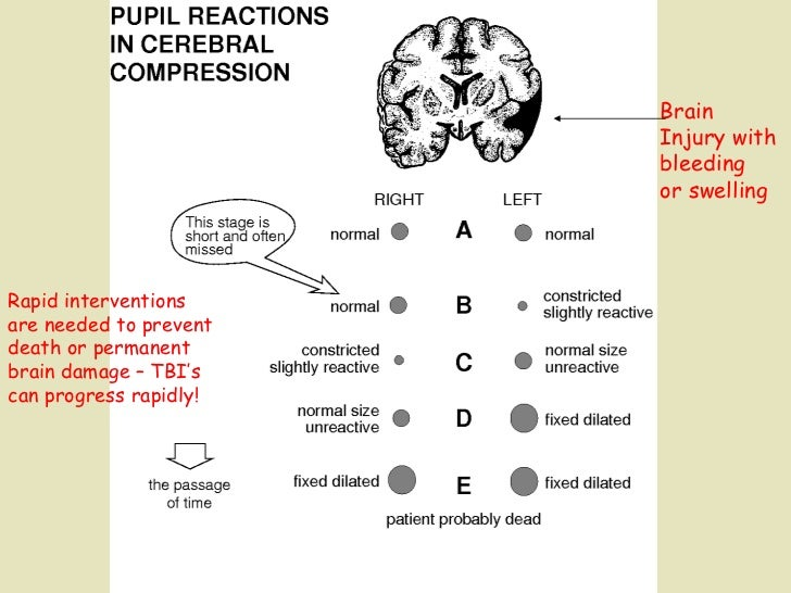 Brain  Injury with  bleeding or swelling Rapid interventions are needed to prevent death or permanent  brain damage – TBI'...
