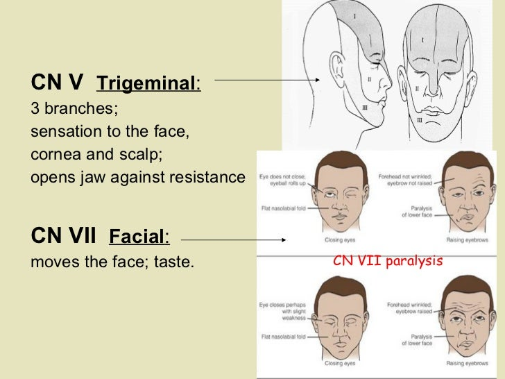 <ul><li>    </li></ul><ul><li>CN V  Trigeminal :   </li></ul><ul><li>3 branches;    </li></ul><ul><li>sensation to the fac...